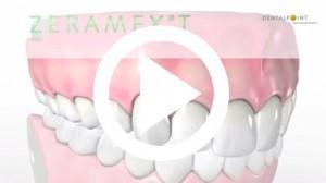 Implants Video